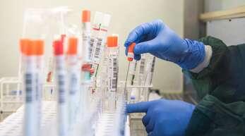 Die Zahl der Infizierten steigt in Deutschland weiter.