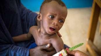 Im Gesundheitszentrum von Gao (Mali) wird der arm eines schwer unterernährten, 16 Monate alten Kindes vermessen.