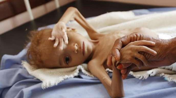 Eine Frau hält die Hand eines stark unterernährten Kindes in einem Krankenhaus in der jemenitischen Provinz Hadscha.