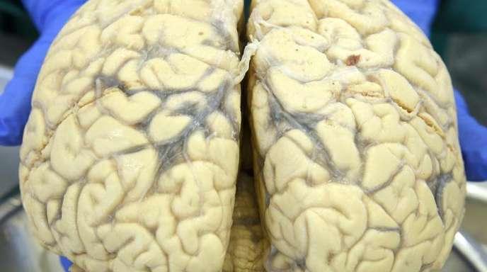 Die graue Substanz besteht hauptsächlich aus Nervenzellen, die weiße Substanz aus Nervenbahnen.